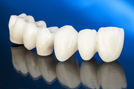 Row of replacement teeth