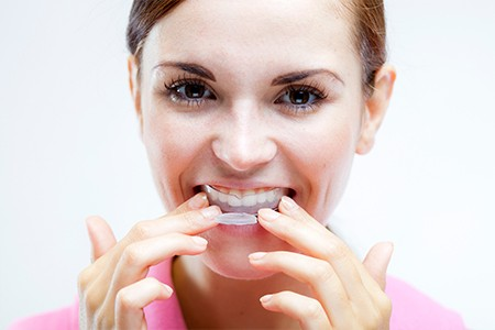 Woman placing at-home teeth whitening tray